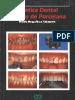 Estetica Dental Carillas de Porcelana
