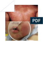 Dermatitis Mediaka Mentosa