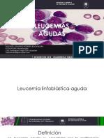 Leucemia linfoblástica aguda