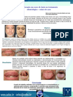 33 Fonoterapia em casos de ânsia no tratamento odontológico 2010