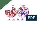 fisiologi leukemia.docx
