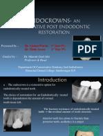 EndoCrowns- An Innovative Post Endodontic Restoration