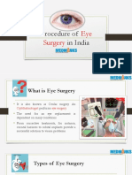 Procedure of Eye Surgery in India | MedMonks