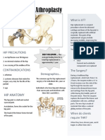 total hip replacement handout