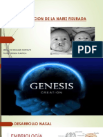 Correccion de La Nariz Fisurada Dr Padilla