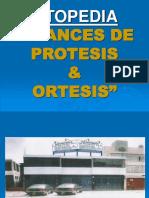 Avances de Protesis & Ortesis