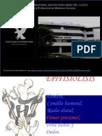 8 Epifisiolisis 130702032843 Phpapp02