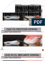Prótesis dental sobre implantes.pptx