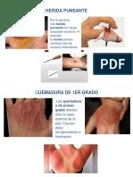 Herida Punsante y Quemadura de 1er Grado