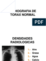 1. Rx. Normal de Torax