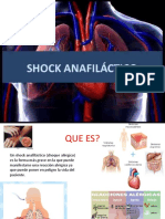 shock-160406212337