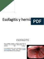 Esofagitis y Hernia Hiatal