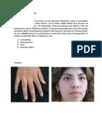 Caso Clínico Dermatomiositis