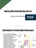 4. Kegawatdaruratan Tension Pneumotoraks
