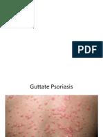 MRCP Prep - Derma