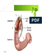 Acute vs Chronic Cholecystitis