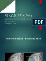 Assignment Rajean Fracture