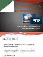 Capas de La Retina en OCT