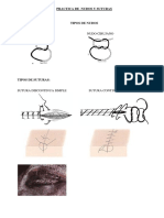 suturas.docx