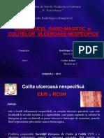 Colita Ulceroasa