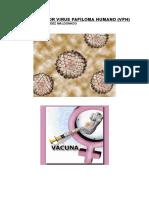 Infeccion Por Virus Papiloma Humano