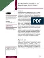 Neurofibromatosis Reporte de Un Caso