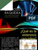 Estenosis Raquidea