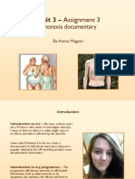 anorexia presentation