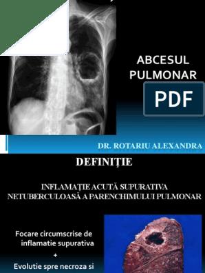 scăderea în greutate a abcesului pulmonar)