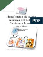 Identificación  de  atipias  celulares  del  ASC  al  Carcinoma  Invasor