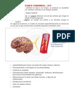 Ataque Cerebral Acv