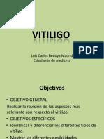 vitiligo-130706101038-phpapp02