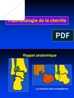 03- Cheville Fractures