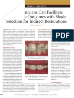 How Clinicians Can Faciliate Predictable Outcomes With Shade Selection for Indirect Restorations