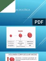 Anemia Microcítica