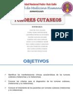 SEMINARIO TUMORES CUTANEOS