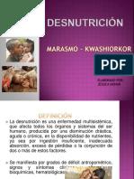 Desnutricion Expo