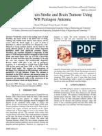 Detection of Brain Stroke and Brain Tumour Using UWB Pentagon Antenna