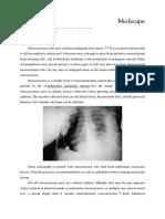 Osteosarcoma.docx