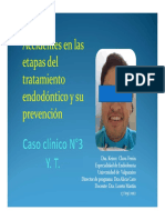 Accidentes en Las Etapas Del Tratamiento Endodontico y Su Prevencion