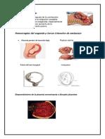 Hipertonía uterina
