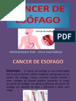Diapositivas Cancer de Esofago