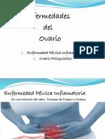 Enfermedades Del Ovario