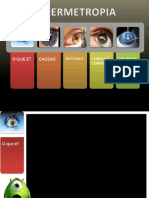 Hipermetropia- Técnico de Ótica Ocular