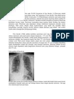 228122523-Metastasis-Paru-Lengkap.docx