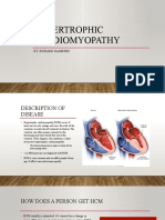 hypertrophic cardiomyopathy powerpoint