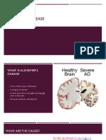 alzheimers disease presentation