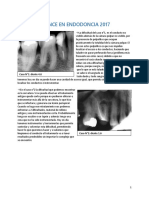Avance en Endodoncia 2017 Ea