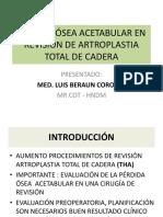 Acetabulo Revision