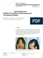 Alopecia Triangular Temporal Karger